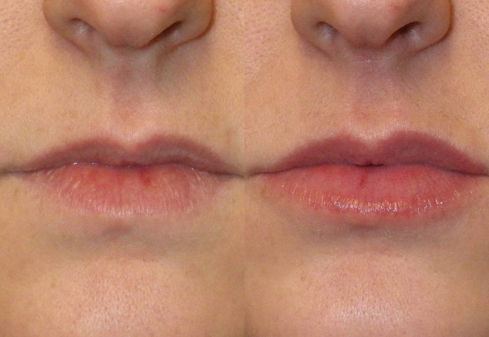 Dermal Fillers Photo Patient 2 | Guyette Facial & Oral Surgery, Scottsdale, AZ