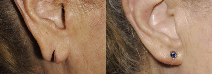 Earlobe Revision Patient 1 | Guyette Facial & Oral Surgery, Scottsdale, AZ