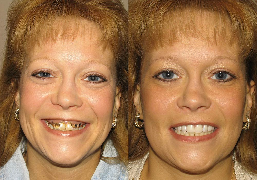 All-on-4 Photo Patient 2 | Guyette Facial & Oral Surgery, Scottsdale, AZ