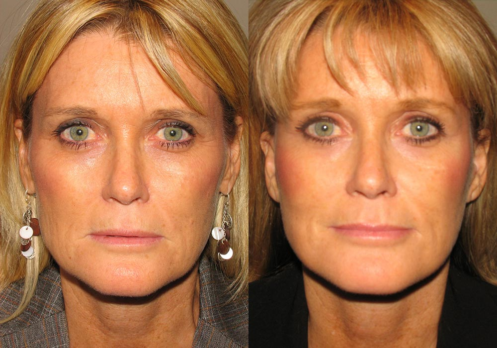 Brow Lift Patient 1 | Guyette Facial & Oral Surgery, Scottsdale, AZ