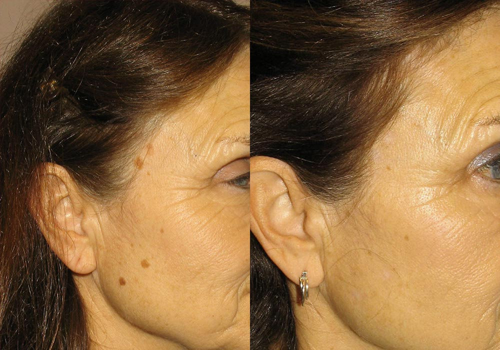 Mole Removal Patient 3 | Guyette Facial & Oral Surgery, Scottsdale, AZ