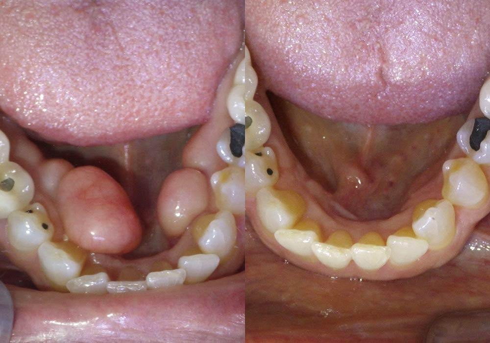 Tori Removal Photo Patient 1 | Guyette Facial & Oral Surgery, Scottsdale, AZ