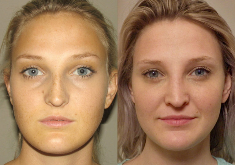 Rhinoplasty Patient 8 | Guyette Facial & Oral Surgery, Scottsdale, AZ
